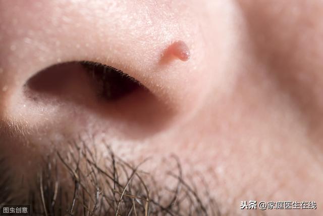 身上突然长了很多小红痣是什么原因?这几个因素请注意