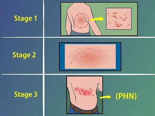 """有一种剧痛叫做""""带状疱疹"""",7类人尤其要当心"""