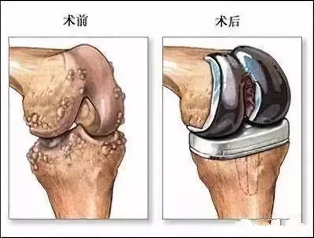 年龄越大,膝盖越疼,别怕!