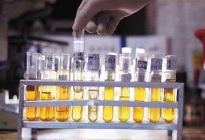 喝水越多尿液越多,肾脏的压力也就越大?辟谣:肾不好不用少喝水