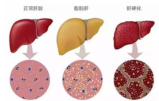 被医生拉入黑名单的3种食物,比酒精还伤肝,脂肪肝患者谨记